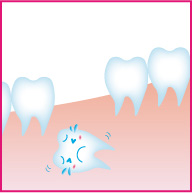 埋状歯の治療
